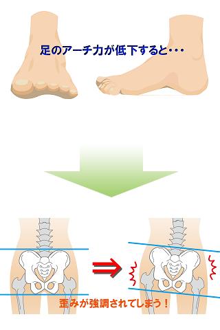 足のアーチ力が低下すると歪みが強調されてしまう